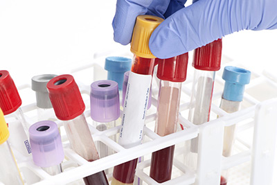 Photo of blood samples in a laboratory.