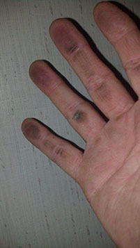 photo of a hand with soot on it